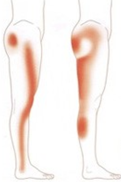 坐骨神経痛脚のしびれ 島本町コリトル鍼灸整体院